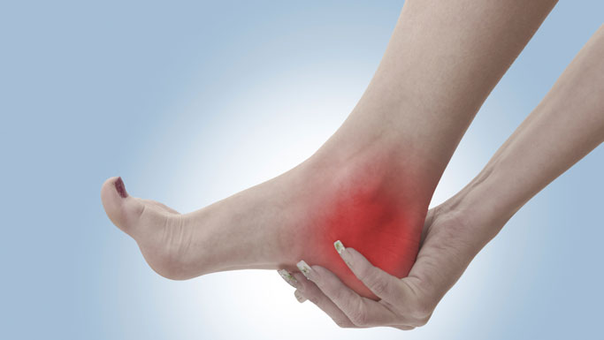 Fremont Chiropractic Treatment for Plantar Fasciitis